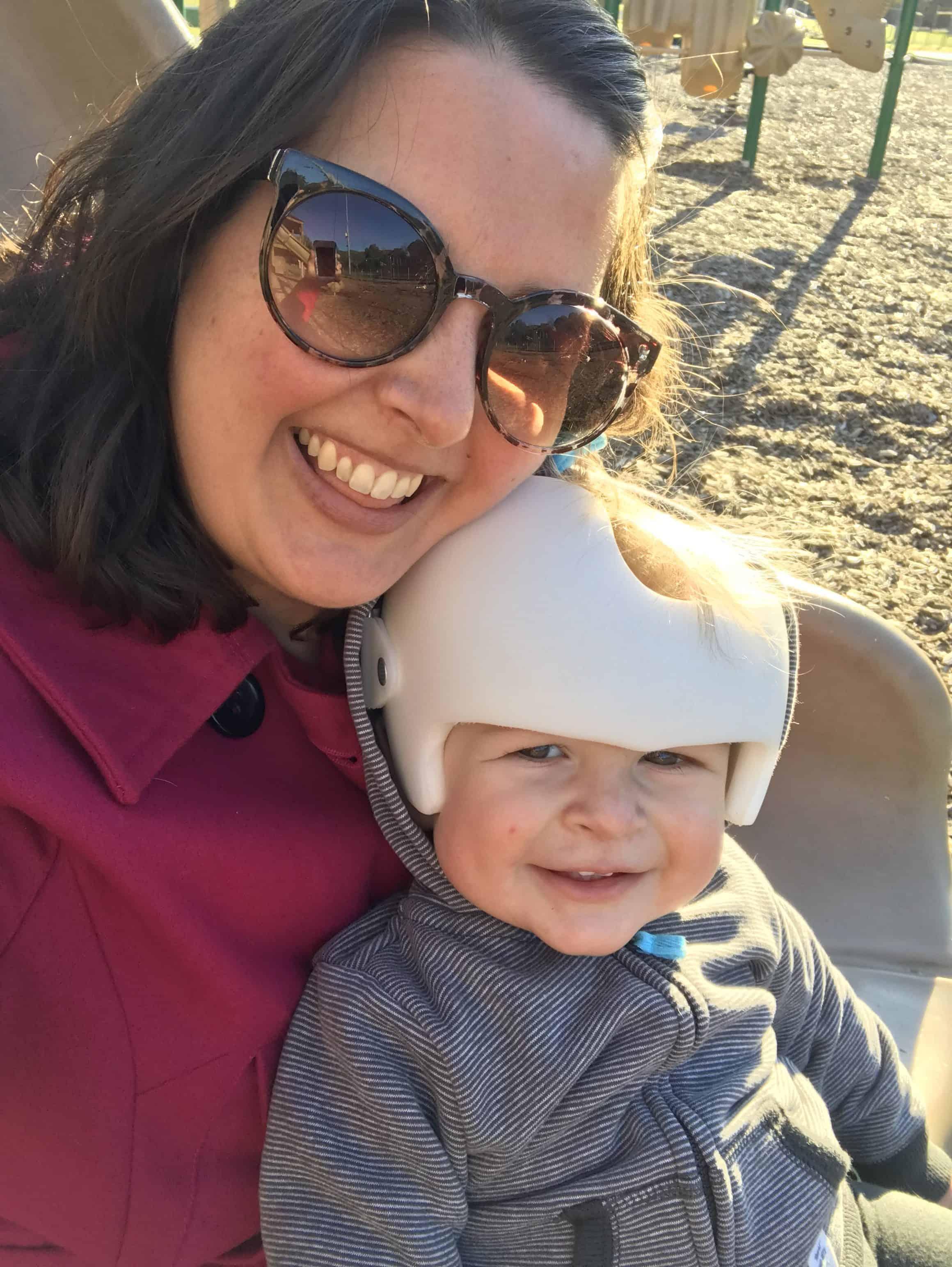 My Baby Wears a Cranial Helmet
