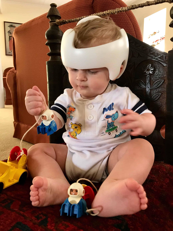 Cranial Helmet Baby Duplos